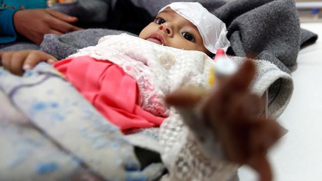 Cholera-uitbraak in Jemen veroorzaakte tot nu 1.500 doden