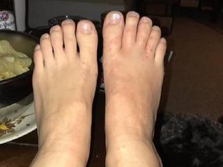 Larven tijdens strandwandeling in voeten gekropen