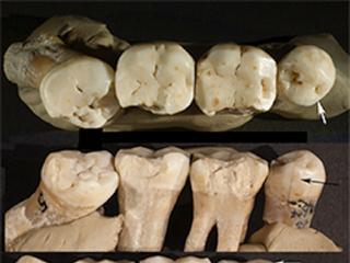 Sporen van 'tandenstokers' aangetroffen op 130.000 jaar oude tanden
