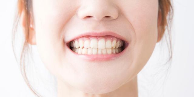 Zorgt bepaalde tandpasta echt voor wittere tanden?