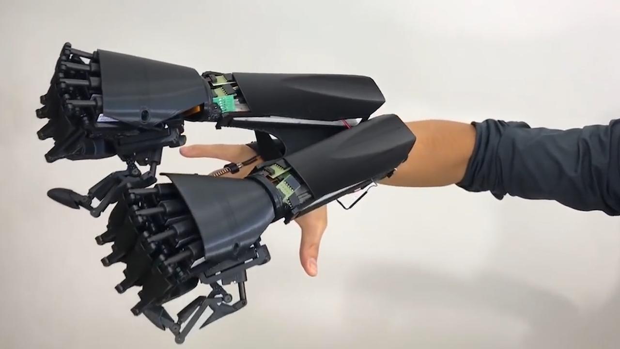 Italiaans bedrijf maakt prothese met dubbele hand